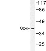 NBP1-00865 - G protein z alpha