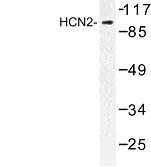 NBP1-00866 - HCN2 / BCNG2