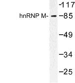 NBP1-00878 - hnRNP-M / HNRNPM