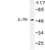 NBP1-00885 - CD127 / IL7R
