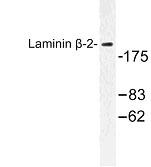 NBP1-00904 - Laminin beta-2