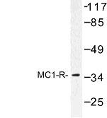 NBP1-00912 - MC1-R