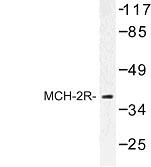 NBP1-00916 - MCHR2 / GPR145