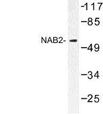 NBP1-00938 - NAB2