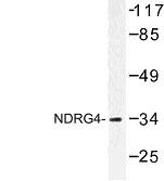NBP1-00940 - NDRG4