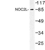 NBP1-00953 - NOC2L