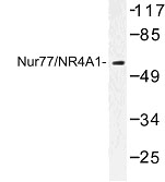 NBP1-00961 - NAK1