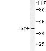 NBP1-00965 - P2RY4 / P2Y4