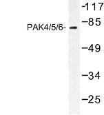 NBP1-00971 - PAK4/PAK5/PAK6