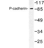 NBP1-00974 - Cadherin-3