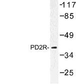 NBP1-00975 - PTGDR