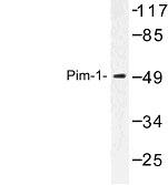 NBP1-00980 - PIM1