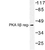 NBP1-00983 - PRKAR2B