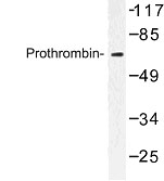 NBP1-00992 - Prothrombin (F2)