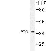 NBP1-00993 - PPP1R3C / PTG