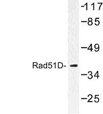NBP1-00999 - RAD51L3