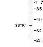 NBP1-01023 - SSTR4