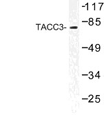 NBP1-01032 - TACC3 / ERIC1