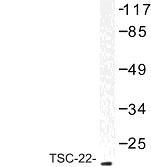 NBP1-01045 - TSC22D1
