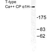 NBP1-01047 - CACNA1H