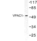 NBP1-01051 - PACAP type II Receptor / VIP Receptor