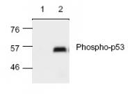 NB100-1913 - TP53 / p53