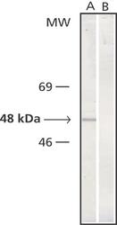 NB100-1628 - TUBG1 / Tubulin gamma 1
