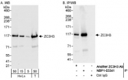 NBP1-03341 - ZC3H3