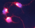 NBP1-03406 - PCLO