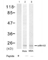 NBP1-04961 - Cofilin-1