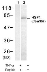 NBP1-04972 - Heat shock factor 1 / HSF1