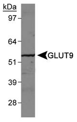 NBP1-05054 - SLC2A9 / GLUT9