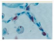 NBP1-05152 - SFTPA1