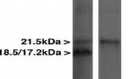 NBP1-05203 - Myelin Basic Protein