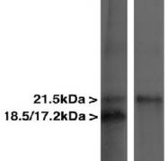NBP1-05204 - Myelin Basic Protein