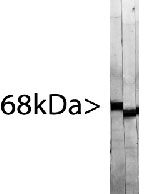 NBP1-05217 - Neurofilament L (68kDa)