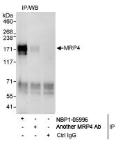 NBP1-05996 - ABCC4 / MRP4