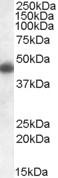 NBP1-06017 - Apolipoprotein L1 (Apo L1)