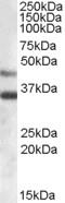 NBP1-06021 - Arylsulfatase B