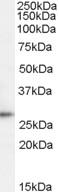 NBP1-06090 - TPD52