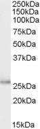NBP1-06091 - Tumor protein D53 (TPD52L1)