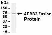 NB120-13989 - Beta-2 adrenergic receptor