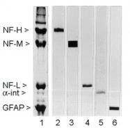 NB300-134 - Neurofilament  M (160 kD)