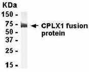 NB120-15855 - Complexin-1