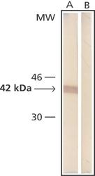 NB600-501 - Actin beta / ACTB