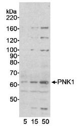 NB100-927 - PNKP