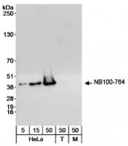 NB100-764 - NMI