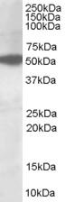 NB100-1480 - AKT3 / PKB gamma