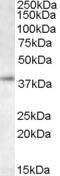 NB300-833 - RNF2
