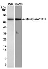 NB100-2308 - ST14 / Matriptase
